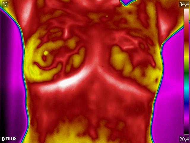 Aparelho antecipa o diagnóstico do câncer de mama em 10 anos