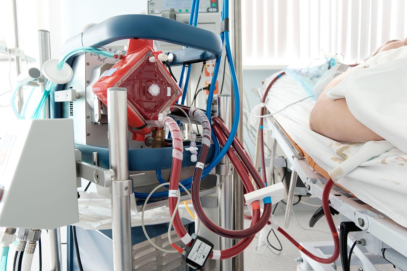 Por que a ECMO ficou tão conhecida na área da Saúde?