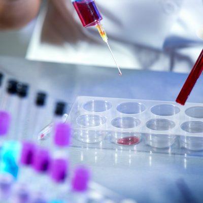 Ilustração sobre Teste rápido para HIV passa a ser vendido em farmácias do Brasil