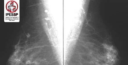 Mamografia e Densitometria Óssea